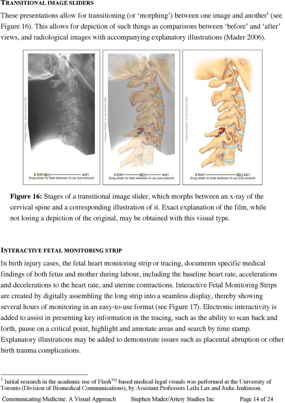 Figure 16: Stages of a transitional image slider, which morphs between an x-ray of the cervical spine and a corresponding illustration of it.