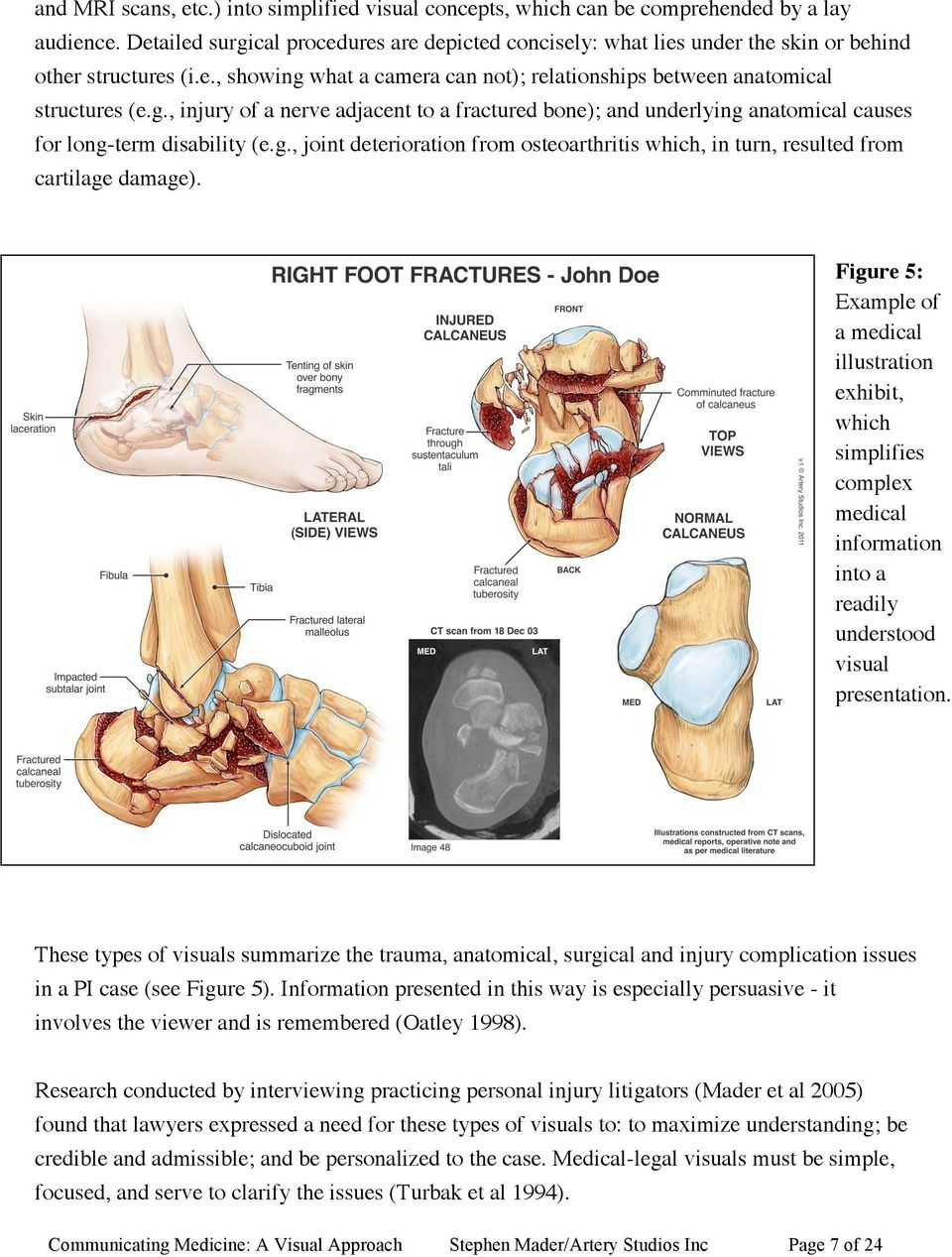g., joint deterioration from osteoarthritis which, in turn, resulted from cartilage damage).