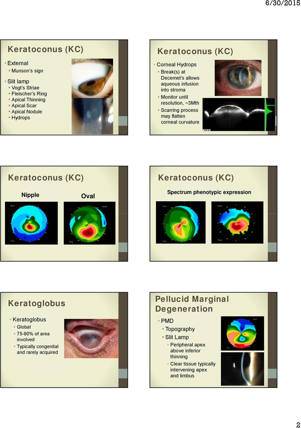 topography guided prk with crosslinking for keratoconus