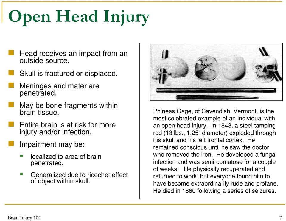 Phineas Gage, of Cavendish, Vermont, is the most celebrated example of an individual with an open head injury. In 1848, a steel tamping rod (13 lbs., 1.