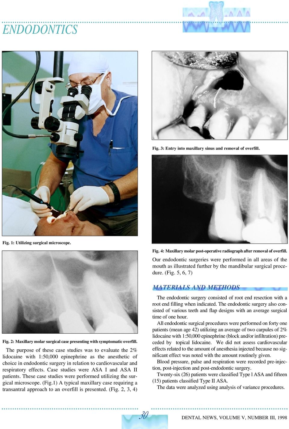 2: Maxillary molar surgical case presenting with symptomatic overfill.