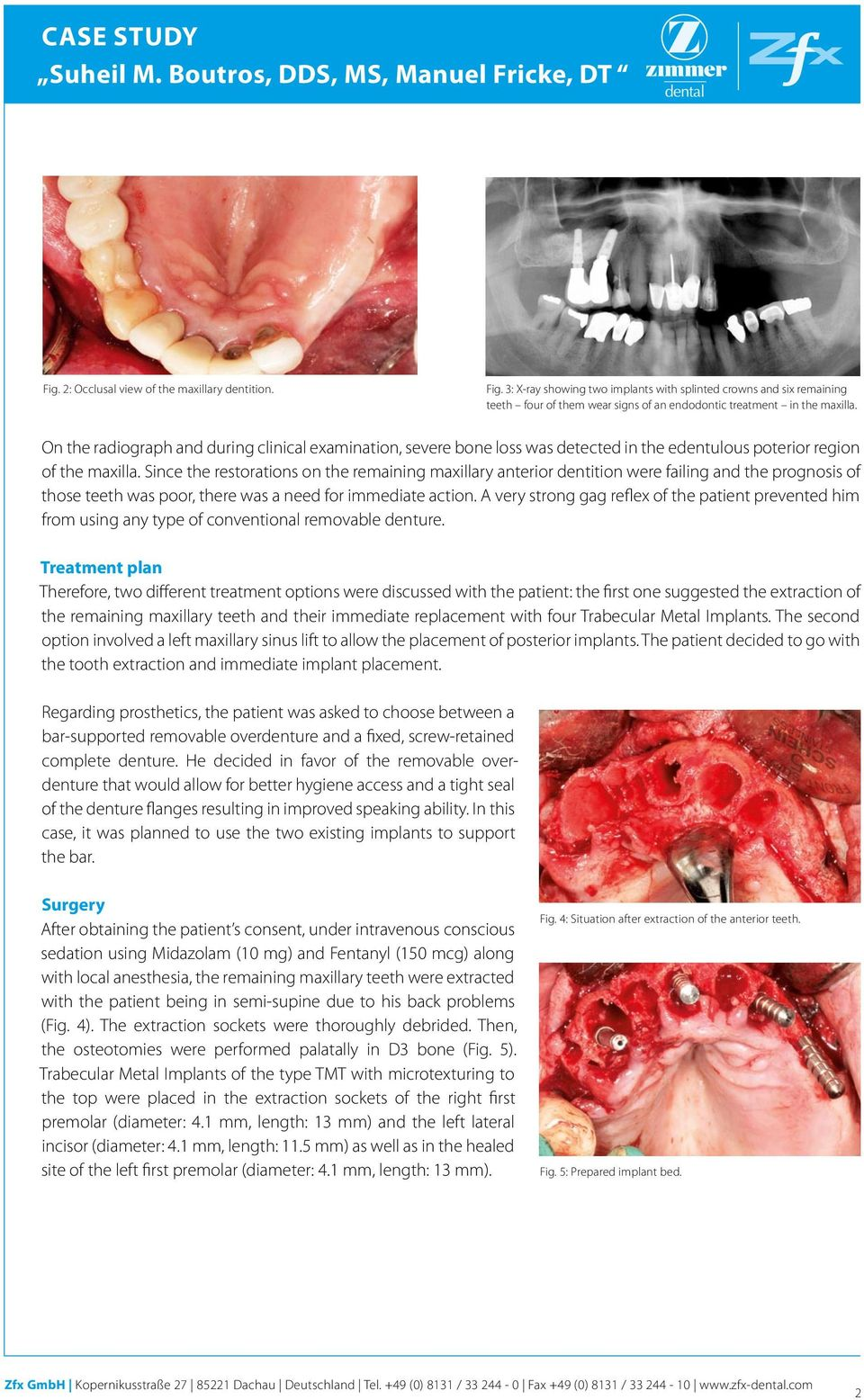 Since the restorations on the remaining maxillary anterior dentition were failing and the prognosis of those teeth was poor, there was a need for immediate action.