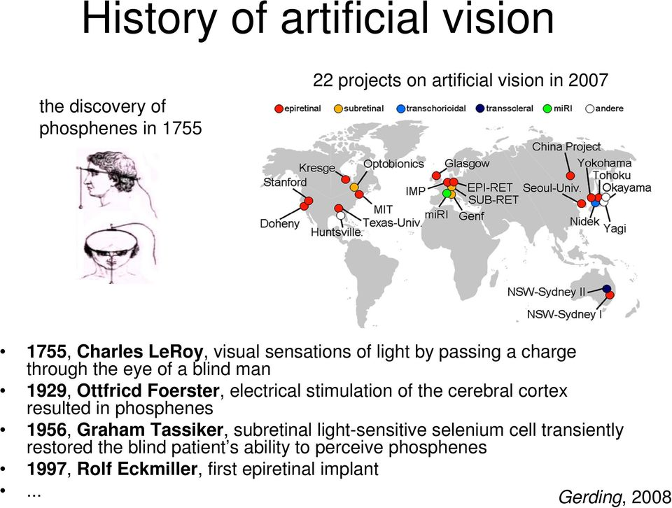 stimulation of the cerebral cortex resulted in phosphenes 1956, Graham Tassiker, subretinal light-sensitive selenium cell