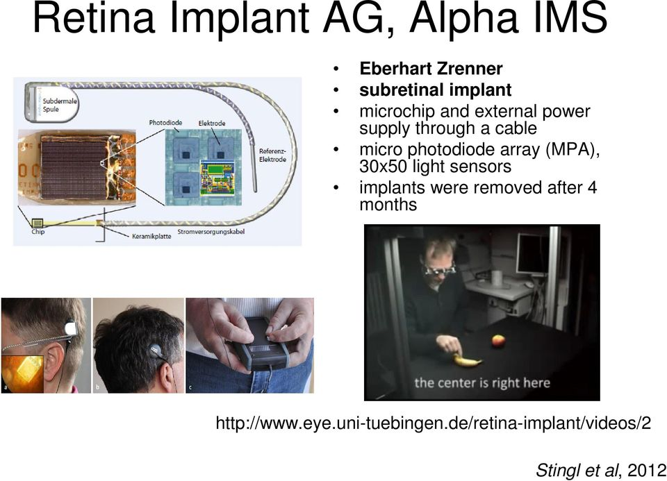 array (MPA), 30x50 light sensors implants were removed after 4 months