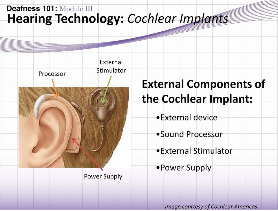 Cochlear Implant: External device Sound dprocessor