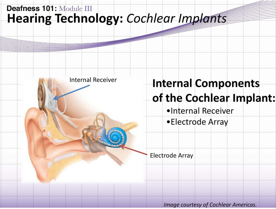 Implant: Internal Receiver Electrode Array