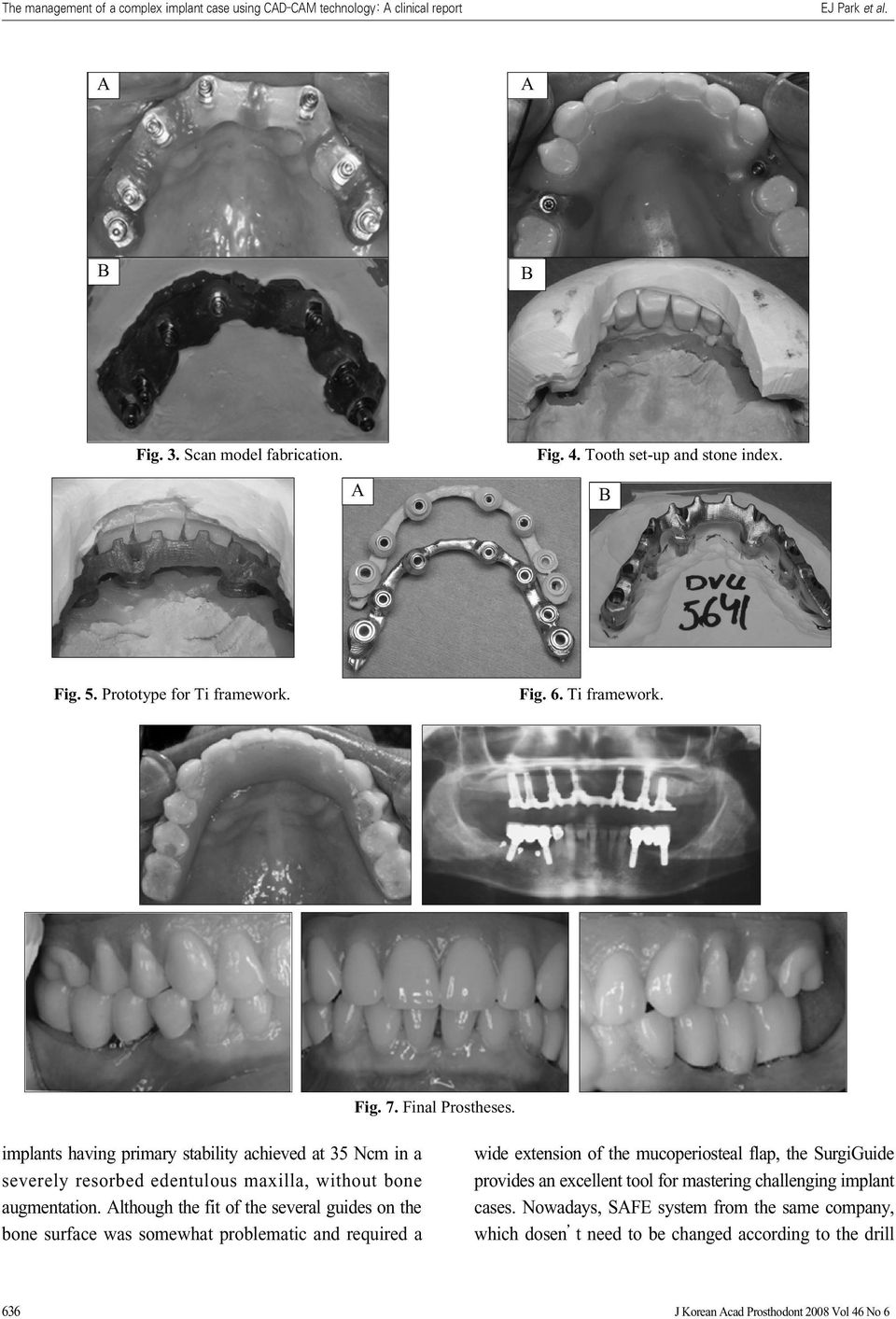 implants having primary stability achieved at 35 Ncm in a severely resorbed edentulous maxilla, without bone augmentation.