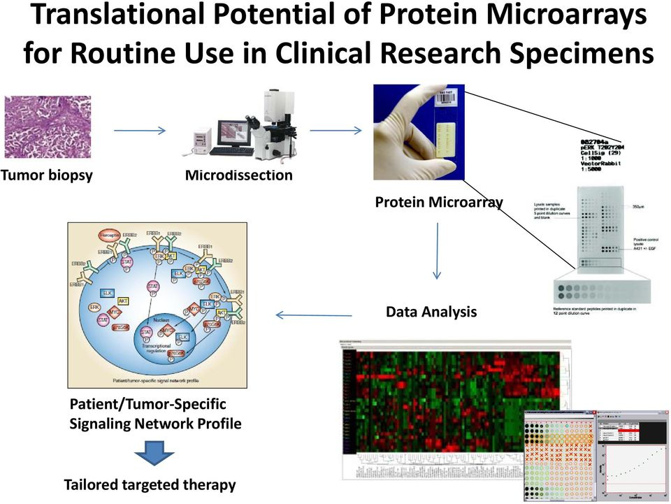 Microdissection Protein Microarray Data Analysis
