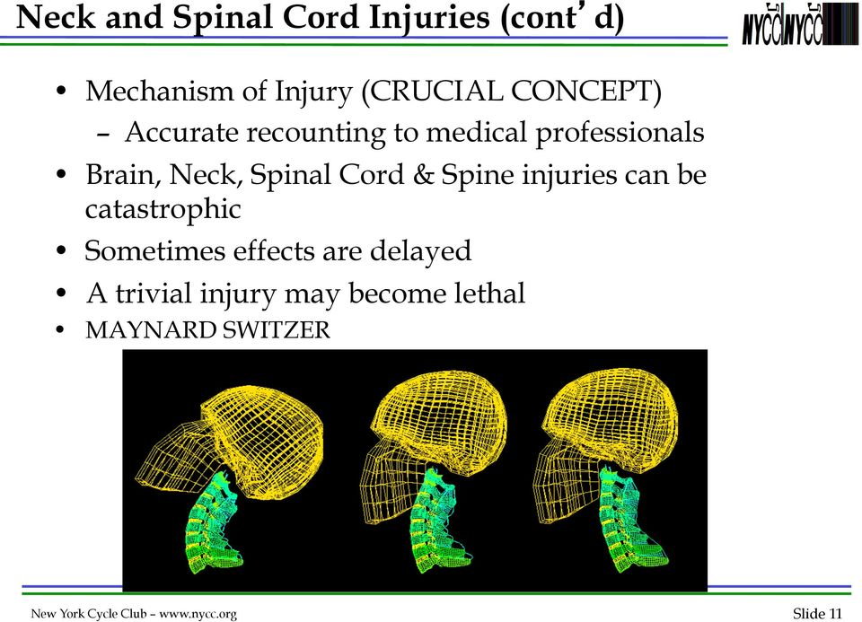 Spine injuries can be catastrophic Sometimes effects are delayed A trivial