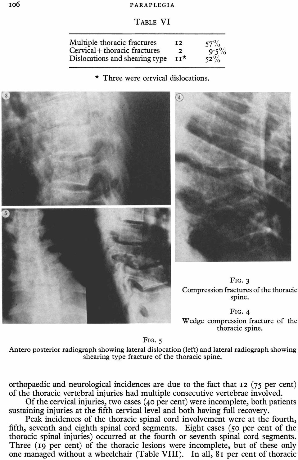 Antero posterior radiograph showing lateral dislocation (left) and lateral radiograph showing shearing type fracture of the thoracic spine.