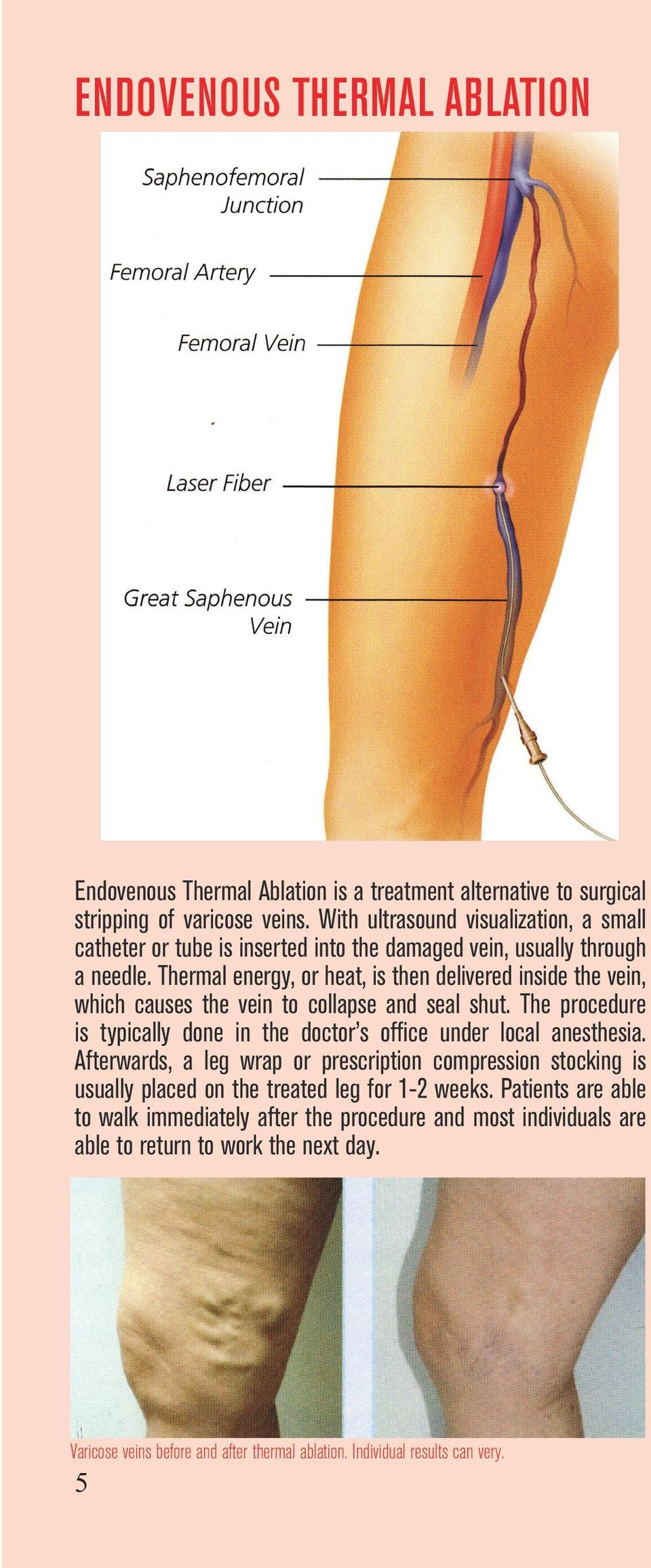 Thermal energy, or heat, is then delivered inside the vein, which causes the vein to collapse and seal shut.