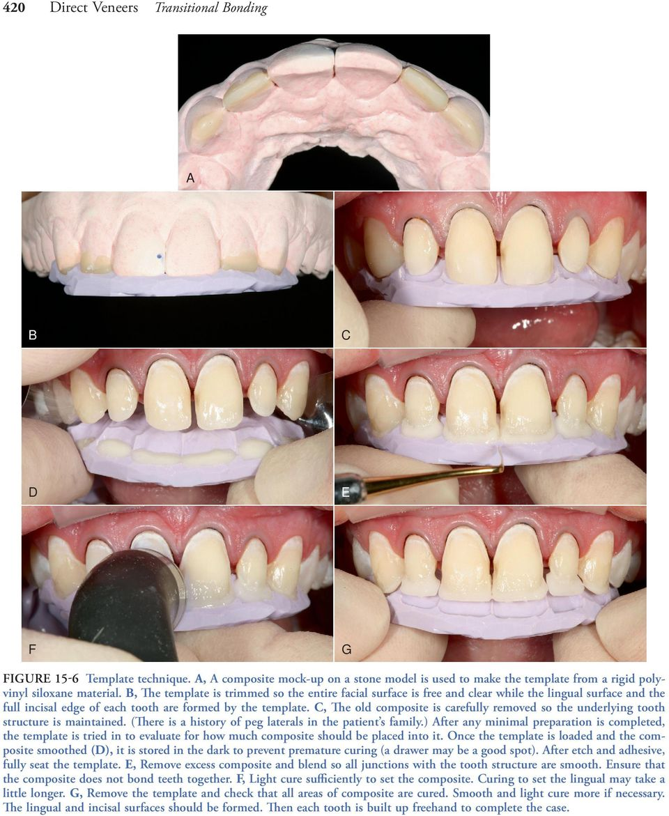 C, The old composite is carefully removed so the underlying tooth structure is maintained. (There is a history of peg laterals in the patient s family.