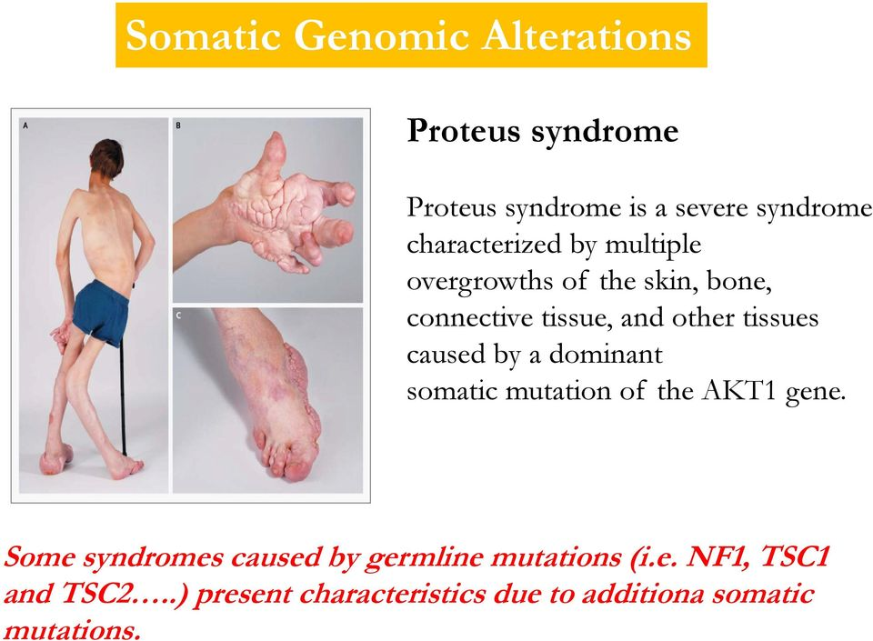 tissues caused by a dominant somatic mutation of the AKT1 gene.