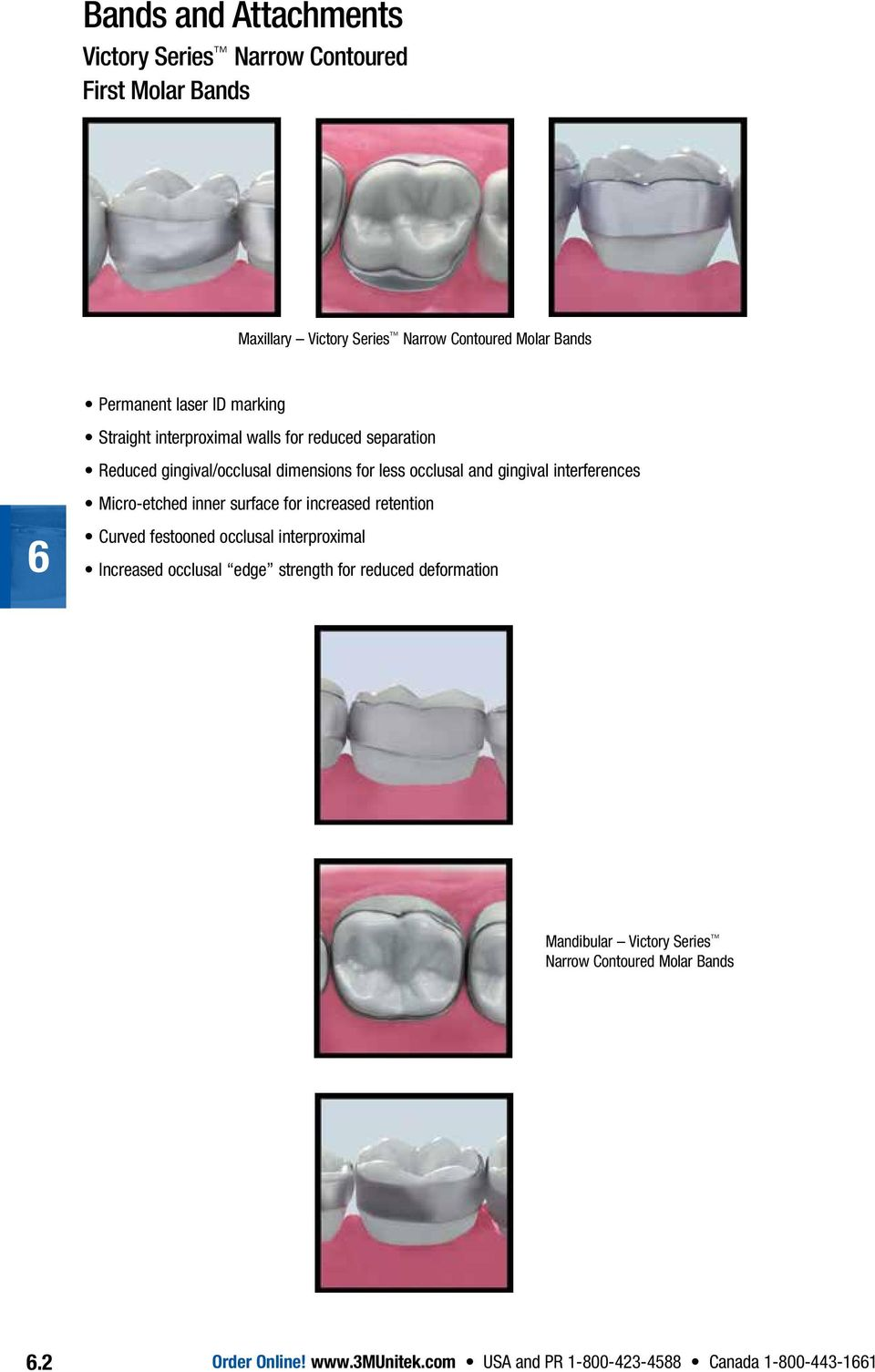 Micro-etched inner surface for increased retention Curved festooned occlusal interproximal Increased occlusal edge strength for reduced