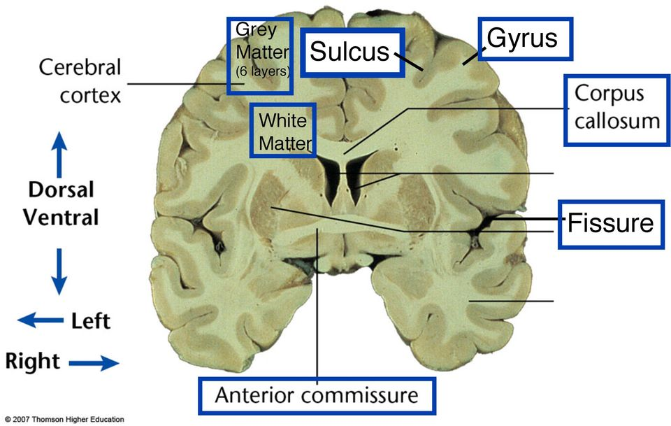 (6 layers)! Sulcus!