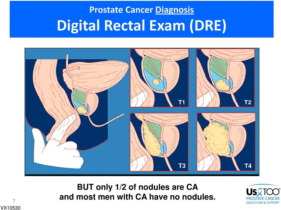 BUT only 1/2 of nodules are CA