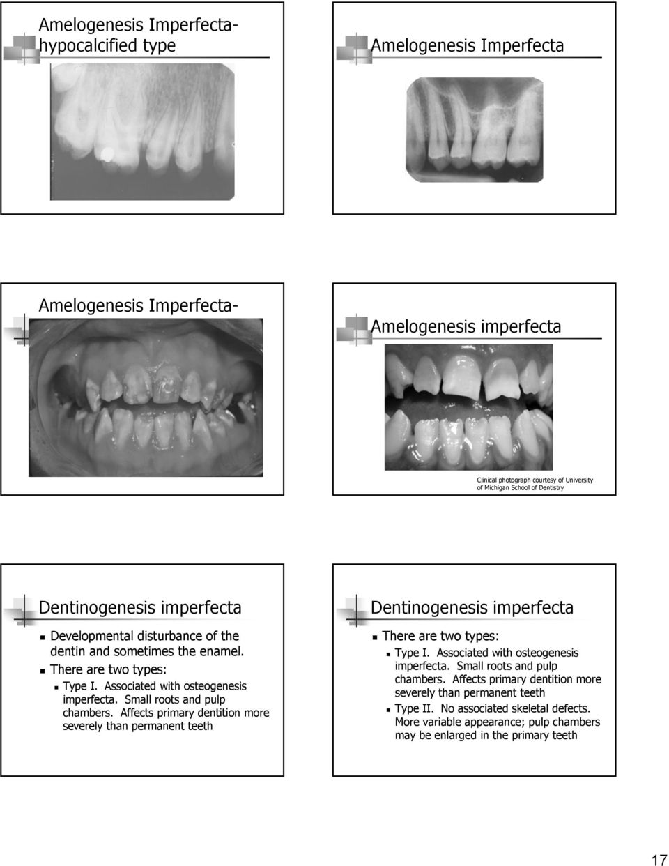Small roots and pulp chambers. Affects primary dentition more severely than permanent teeth Dentinogenesis imperfecta! There are two types:! Type I. Associated with osteogenesis imperfecta.