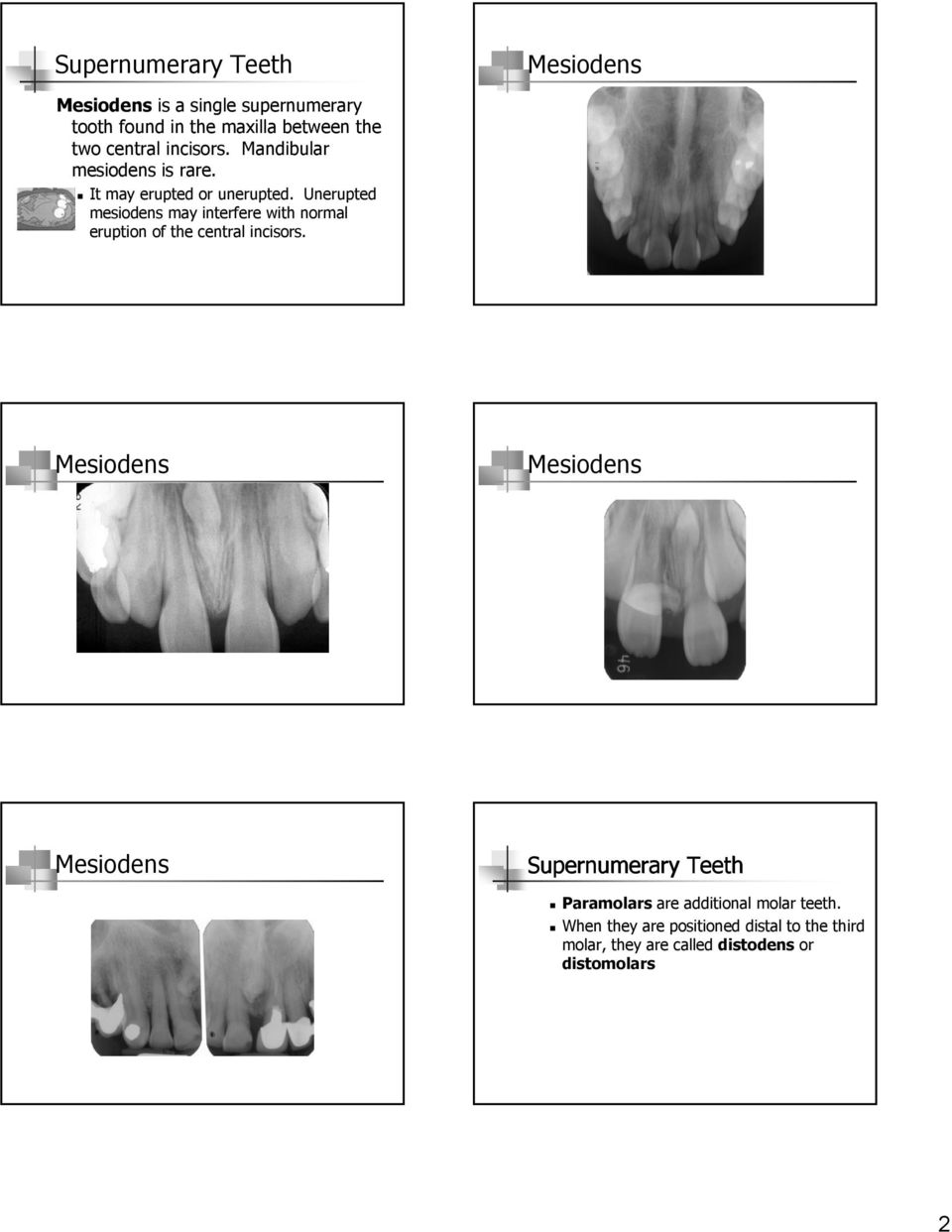 Unerupted mesiodens may interfere with normal eruption of the central incisors.