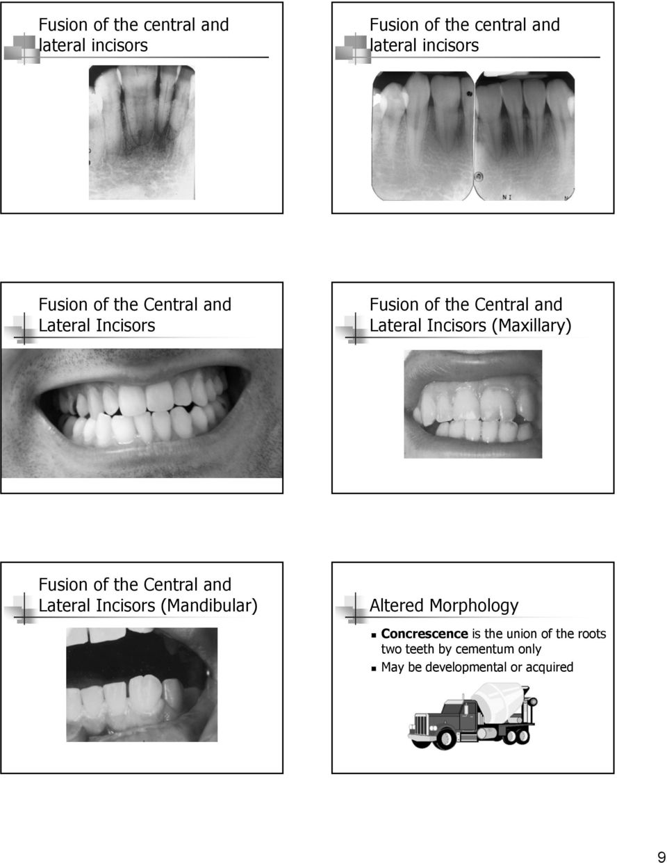 (Maxillary) Fusion of the Central and Lateral Incisors (Mandibular)!