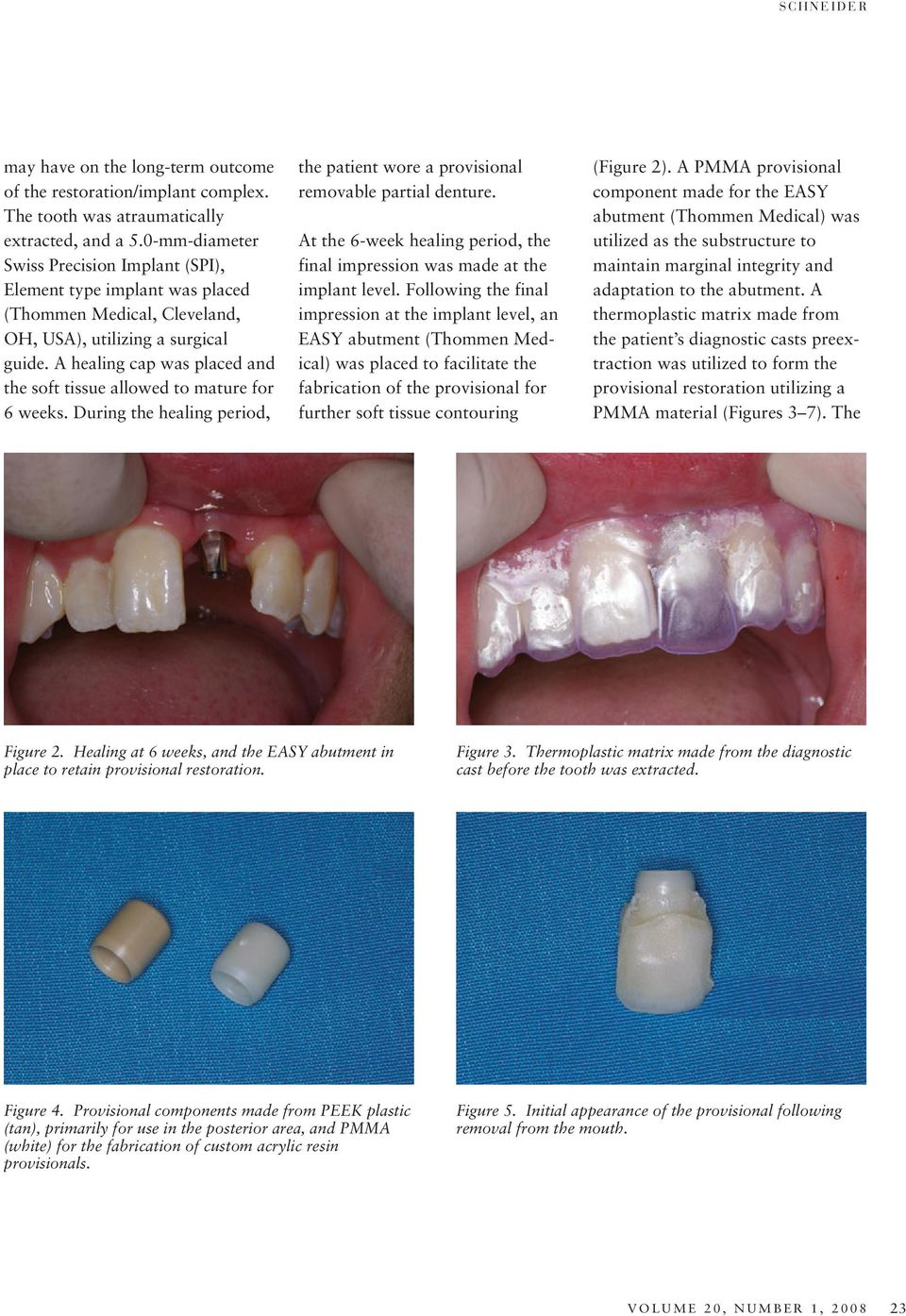 A healing cap was placed and the soft tissue allowed to mature for 6 weeks. During the healing period, the patient wore a provisional removable partial denture.