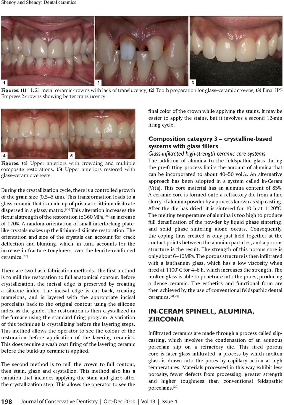 4 5 Figures: (4) Upper anteriors with crowding and multiple composite restorations, (5) Upper anteriors restored with glass ceramic veneers During the crystallization cycle, there is a controlled