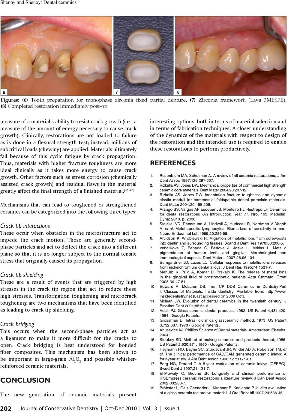 Clinically, restorations are not loaded to failure as is done in a flexural strength test; instead, millions of subcritical loads (chewing) are applied.