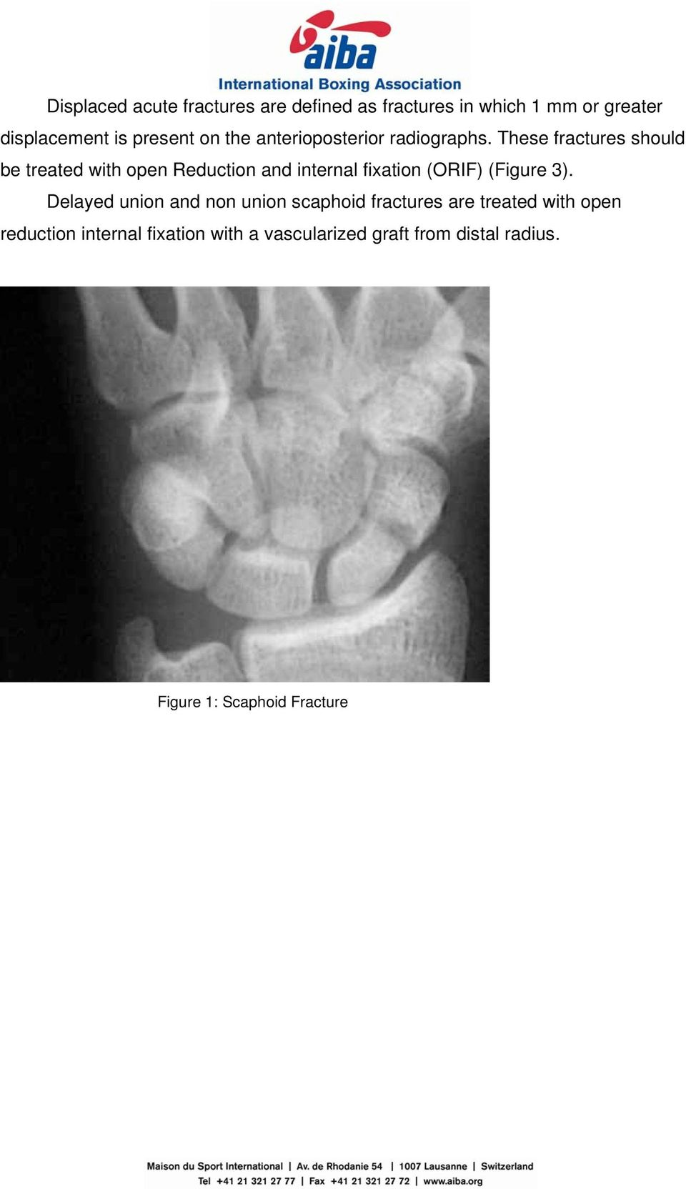 These fractures should be treated with open Reduction and internal fixation (ORIF) (Figure 3).