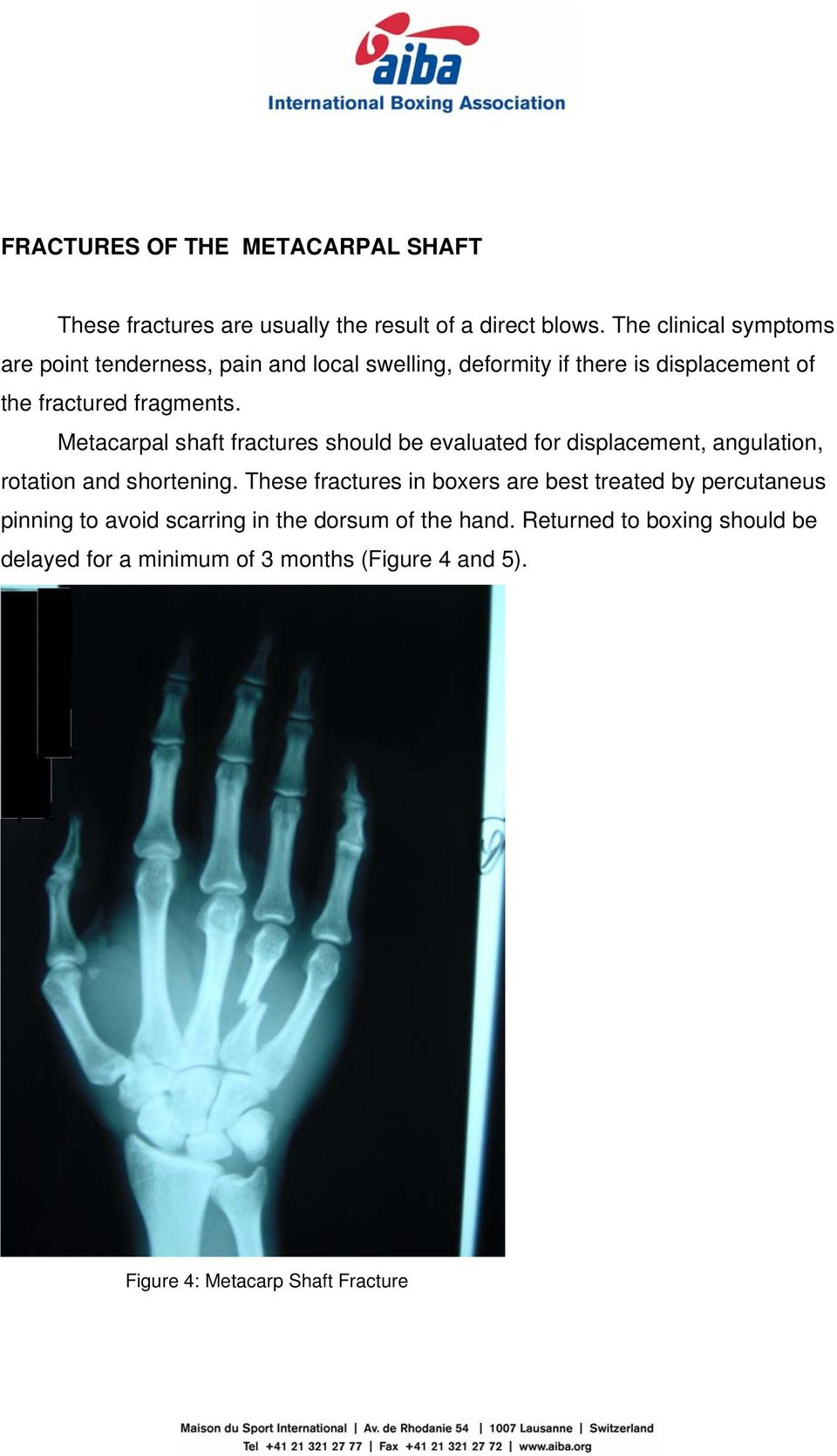 Metacarpal shaft fractures should be evaluated for displacement, angulation, rotation and shortening.