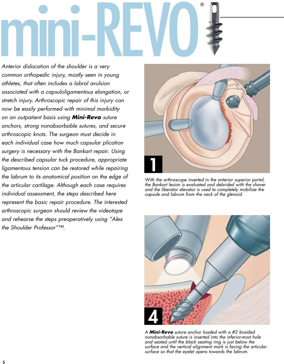 Arthroscopic repair of this injury can now be easily performed with minimal morbidity on an outpatient basis using Mini-Revo suture anchors, strong nonabsorbable sutures, and secure arthroscopic