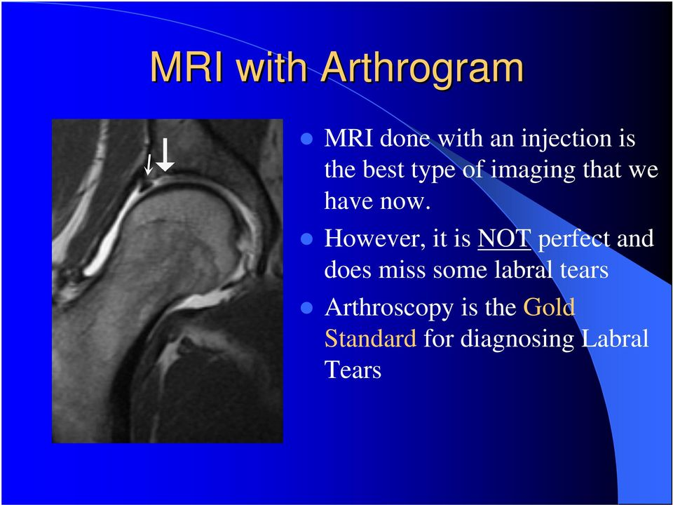 However, it is NOT perfect and does miss some labral