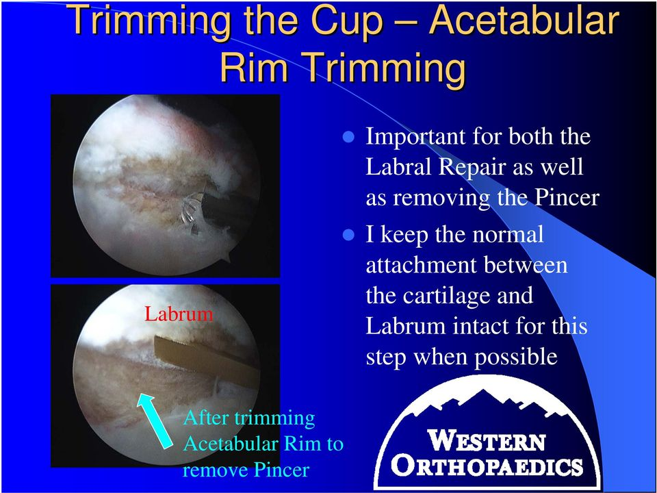 normal attachment between the cartilage and Labrum intact for