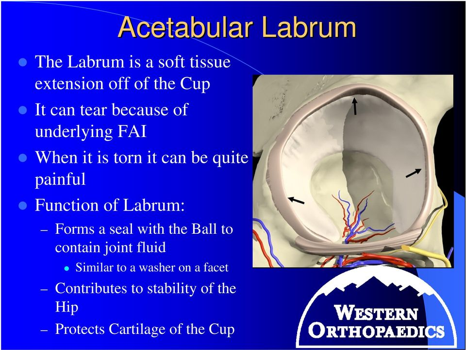 Function of Labrum: Forms a seal with the Ball to contain joint fluid Similar