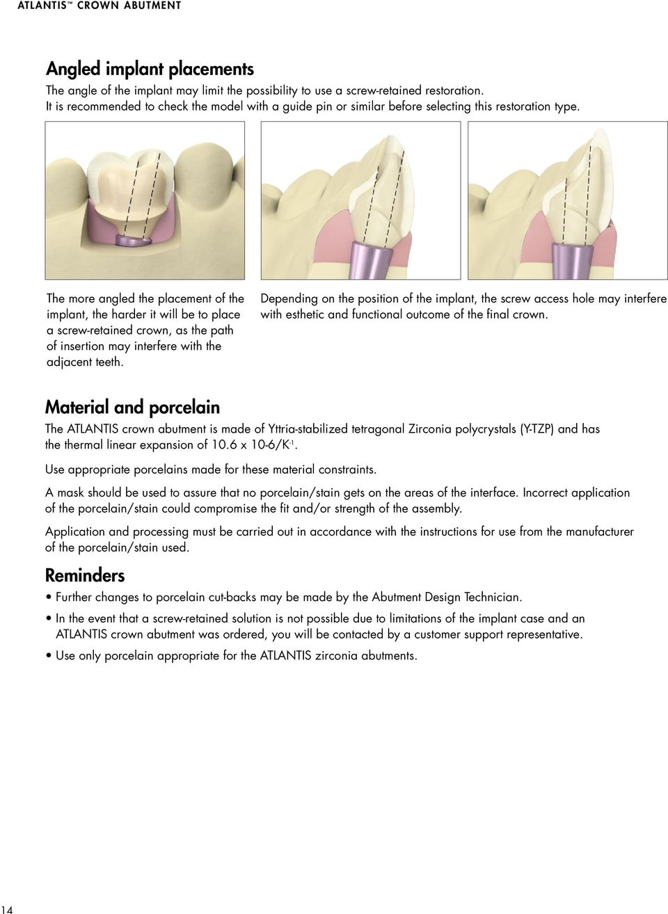 The more angled the placement of the implant, the harder it will be to place a screw-retained crown, as the path of insertion may interfere with the adjacent teeth.