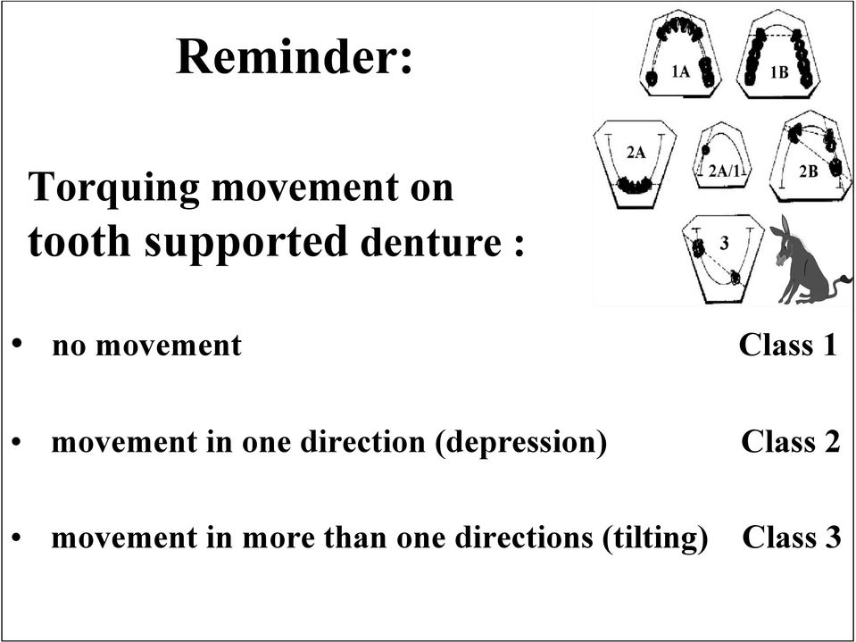 movement in one direction (depression) Class