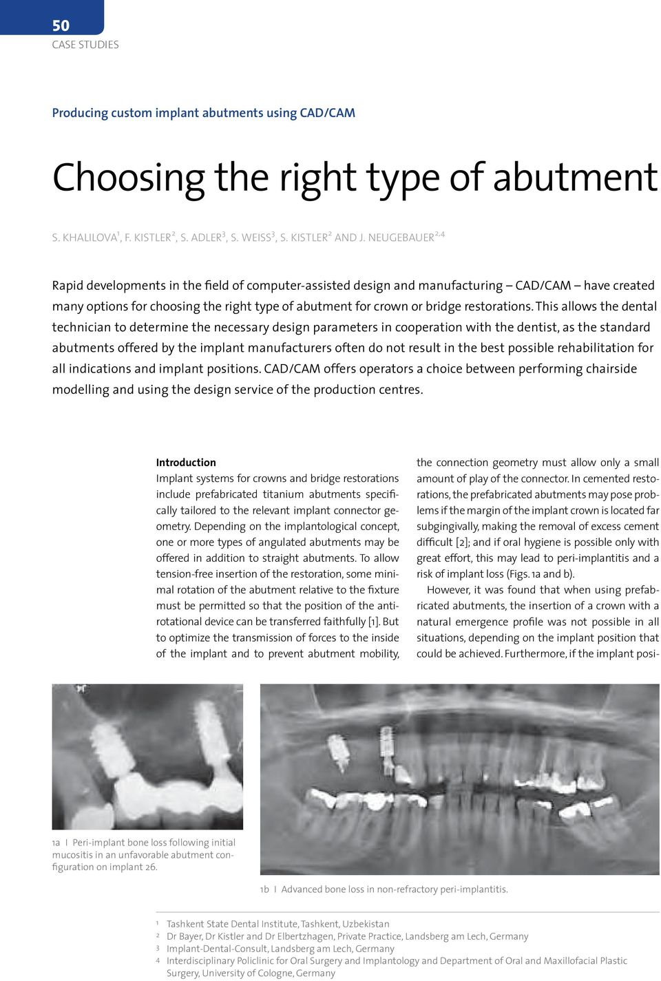 This allows the dental technician to determine the necessary design parameters in cooperation with the dentist, as the standard abutments offered by the implant manufacturers often do not result in