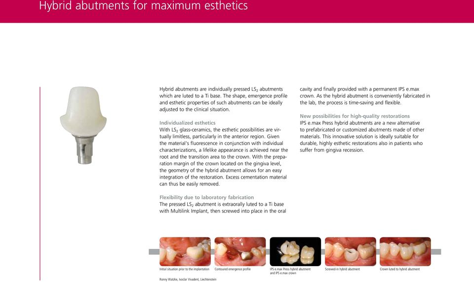 Individualized esthetics With LS 2 glass-ceramics, the esthetic possibilities are virtually limitless, particularly in the anterior region.