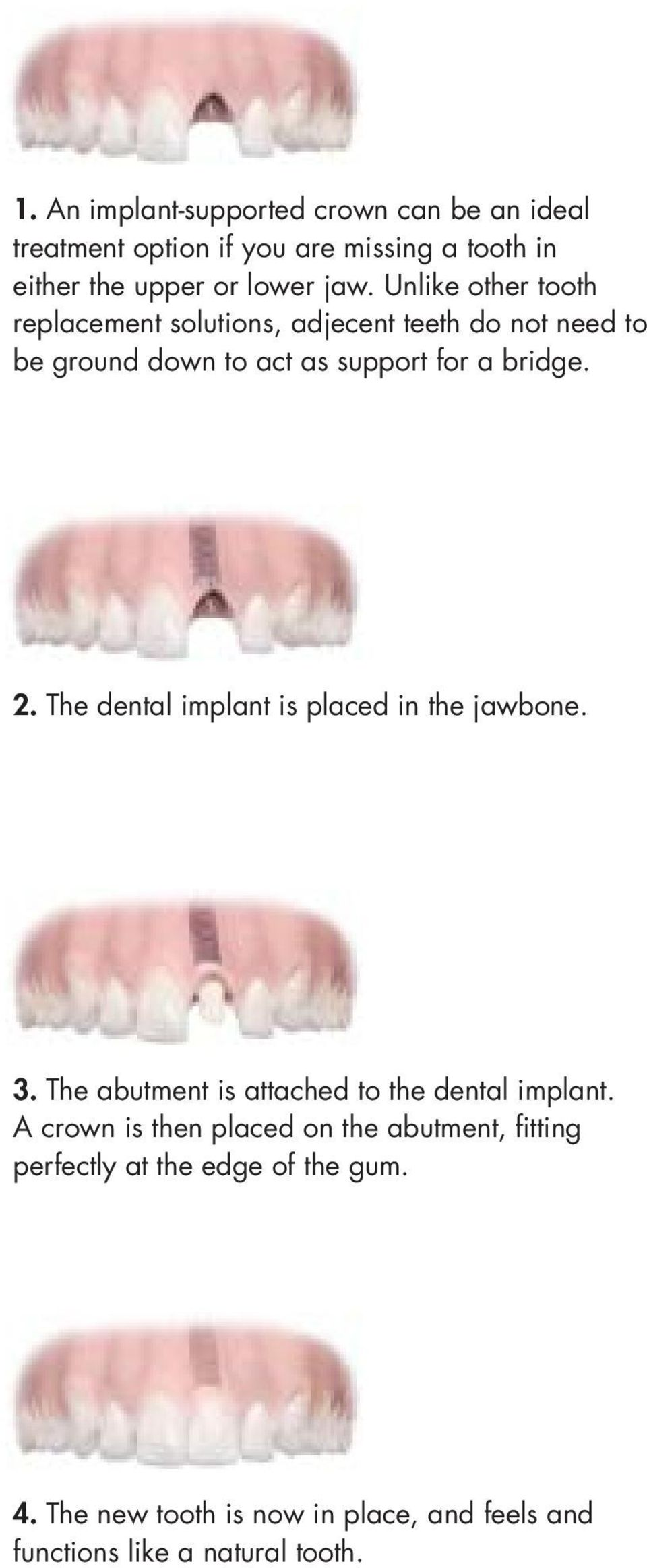 The dental implant is placed in the jawbone. 3. The abutment is attached to the dental implant.