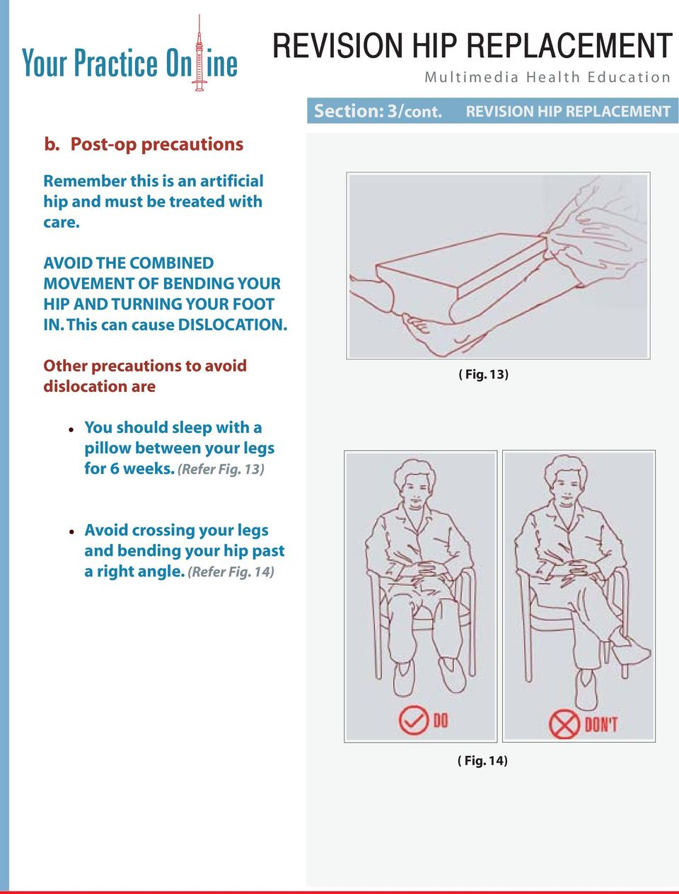 Other precautions to avoid dislocation are You should sleep with a pillow between your legs for 6 weeks.