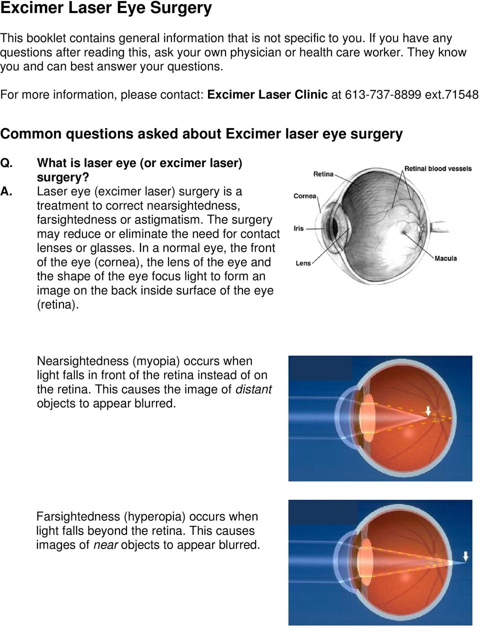 What is laser eye (or excimer laser) surgery? A. Laser eye (excimer laser) surgery is a treatment to correct nearsightedness, farsightedness or astigmatism.