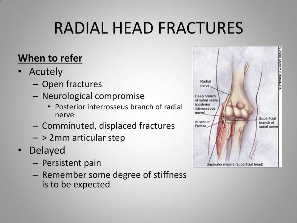 nerve Comminuted, displaced fractures > 2mm articular step