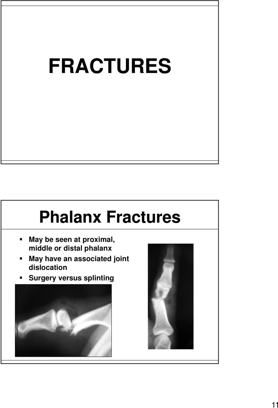 phalanx May have an associated joint