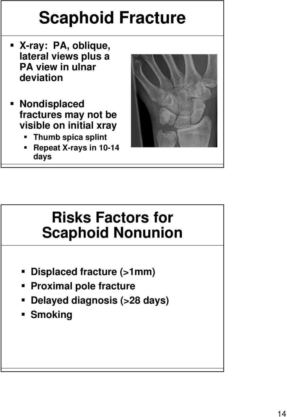 spica splint Repeat X-rays in 10-14 days Risks Factors for Scaphoid Nonunion