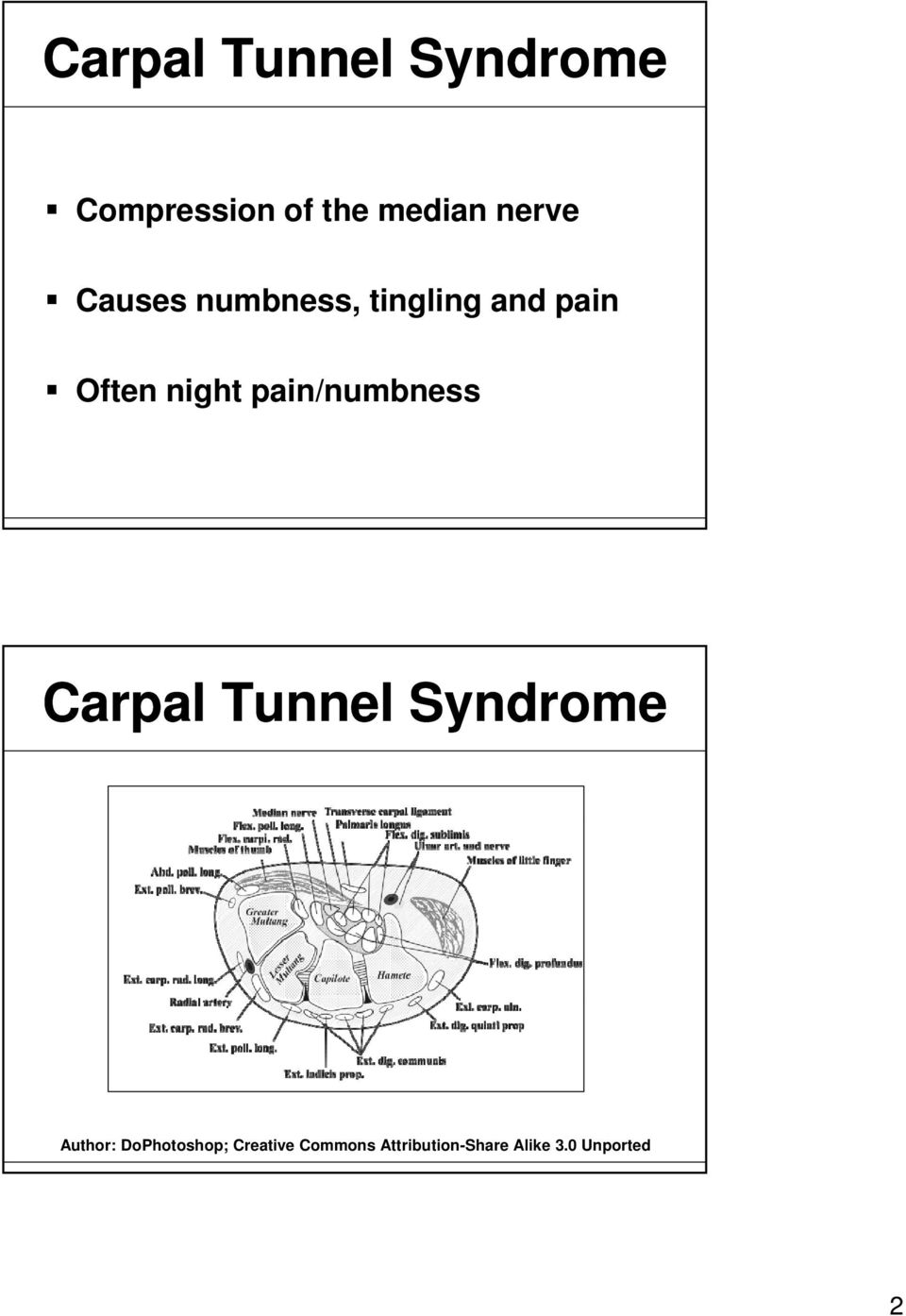 pain/numbness Carpal Tunnel Syndrome Author: