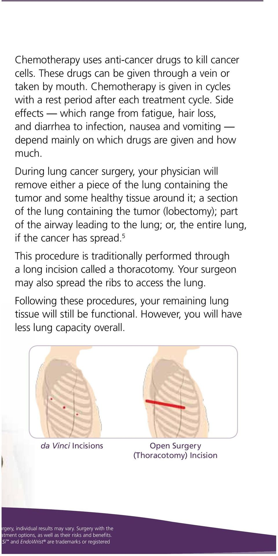 During lung cancer surgery, your physician will remove either a piece of the lung containing the tumor and some healthy tissue around it; a section of the lung containing the tumor (lobectomy); part