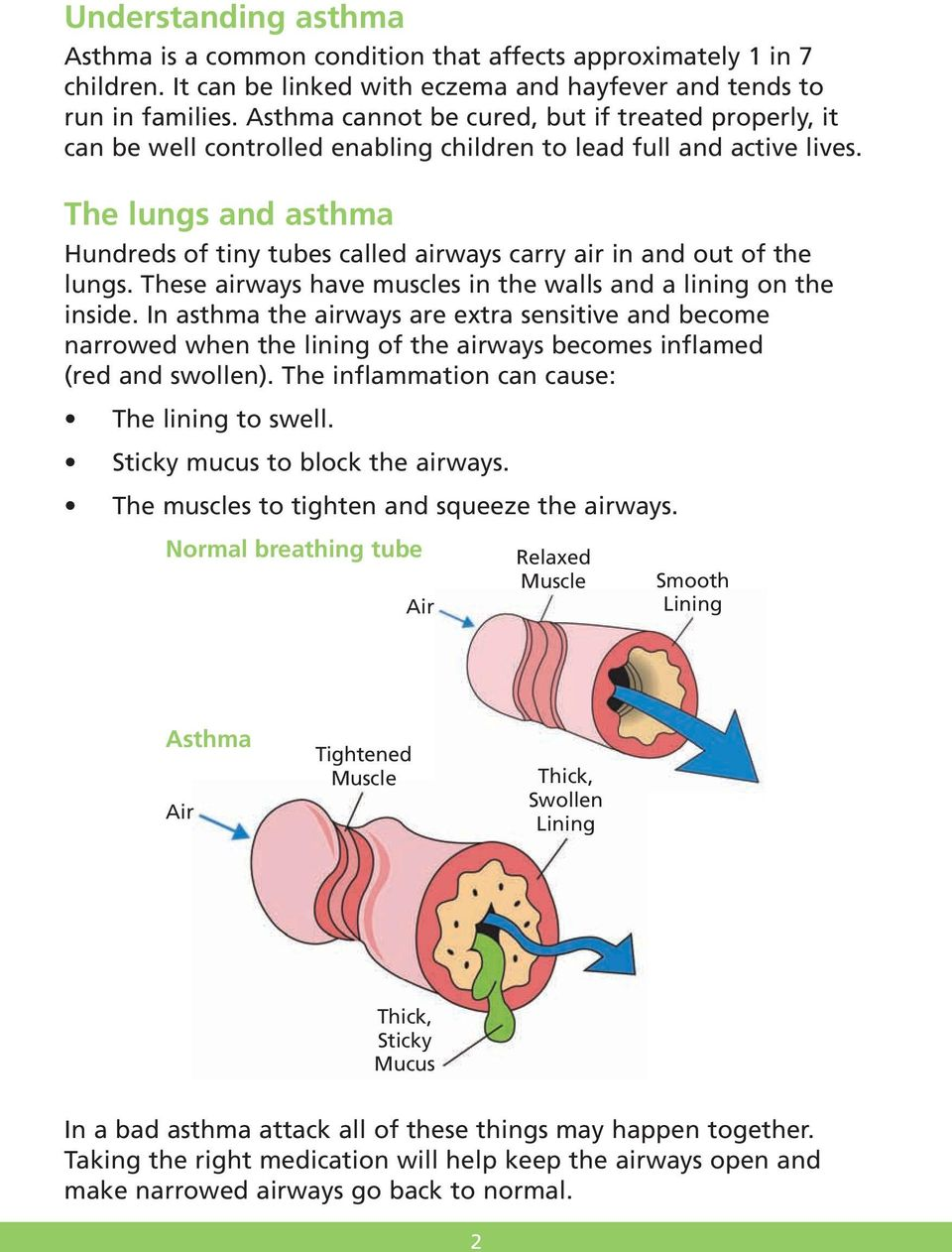 The lungs and asthma Hundreds of tiny tubes called airways carry air in and out of the lungs. These airways have muscles in the walls and a lining on the inside.