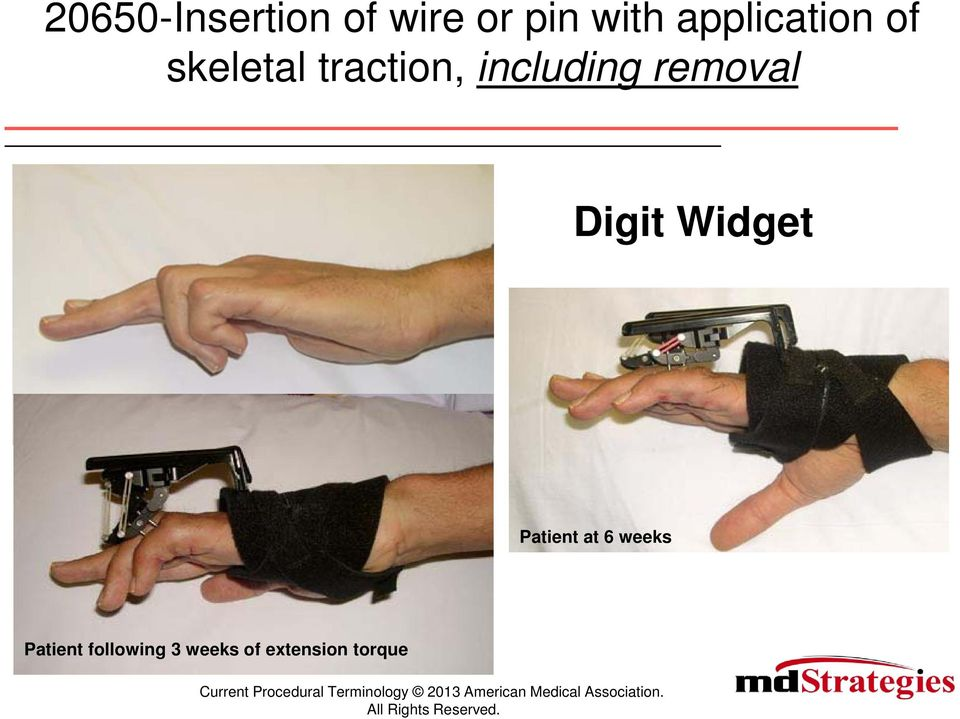 including removal Digit Widget Patient at