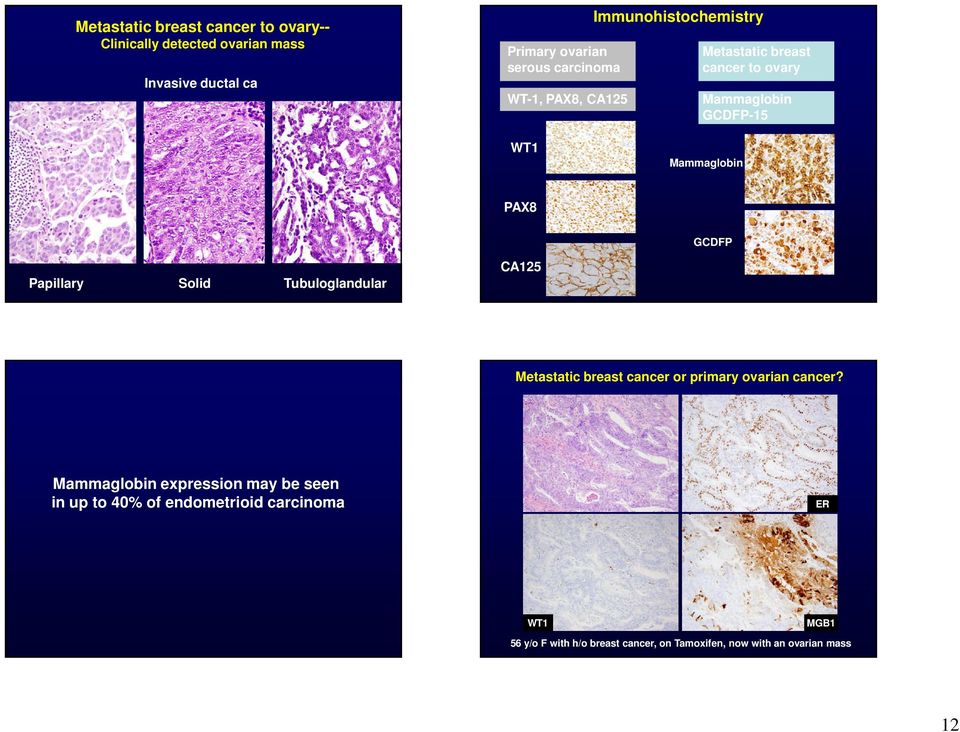 Papillary Solid Tubuloglandular CA125 Metastatic breast cancer or primary ovarian cancer?