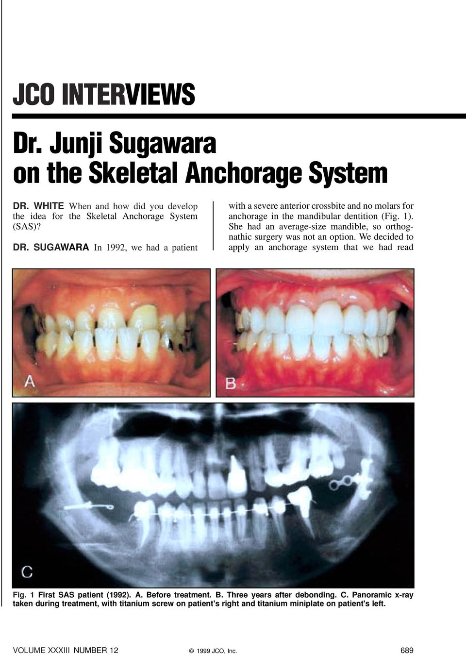 SUGAWARA In 1992, we had a patient with a severe anterior crossbite and no molars for anchorage in the mandibular dentition (Fig. 1).