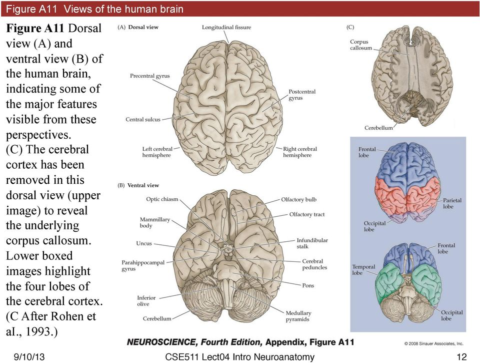 (C) The cerebral cortex has been removed in this dorsal view (upper image) to reveal the