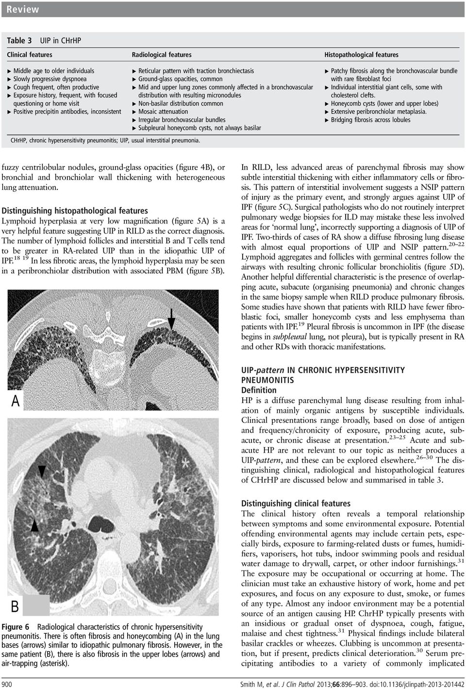 Reticular pattern with traction bronchiectasis Ground-glass opacities, common Mid and upper lung zones commonly affected in a bronchovascular distribution with resulting micronodules Non-basilar